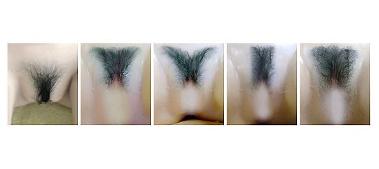 Pubic Hair Implant